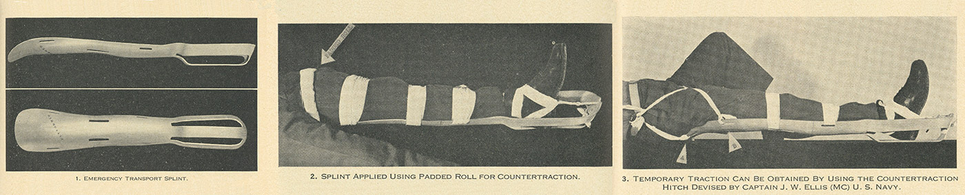 A selection of images from the US Navy Medical Bulletin depicting left: splint top and bottom, middle: splint fitment, right: splint with adapted hitch